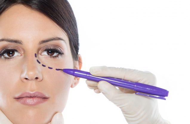 Cirugía Facial Estética